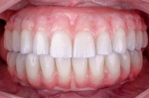 All On Full Contour Zirconia Bridge